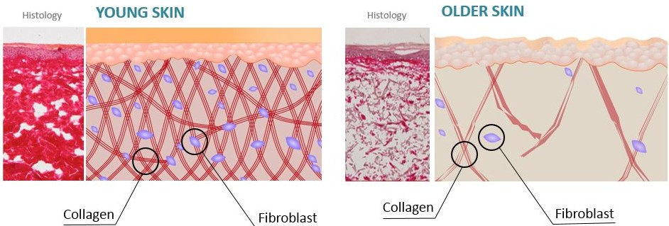 Collagen Production in Younger Skin Compared to Older Skin