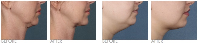 Kybella Before and After Treatment Images